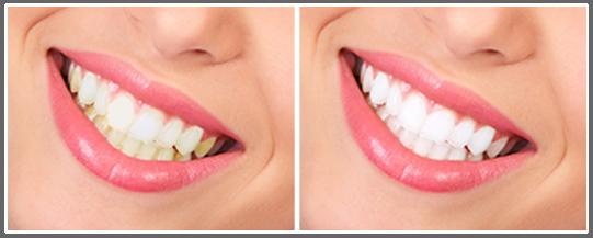 سفید کردن دندان بلیچینگ چیست؟ Bleaching