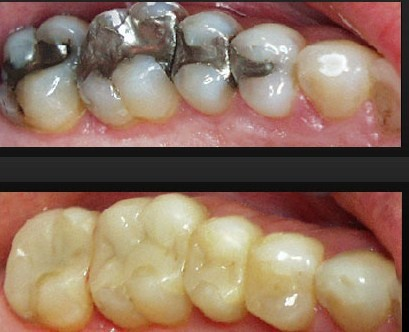 ترمیم دندان Dental Filling , Dental Restoration