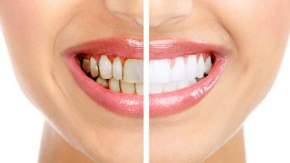 هفت دلیل اصلی آسیب دندان کدامها هستند؟