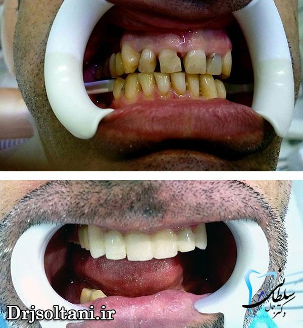 نمونه کار دندانپزشکی زیبایی
