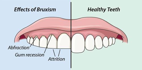 جلوگیری از دندان قروچه کودکان