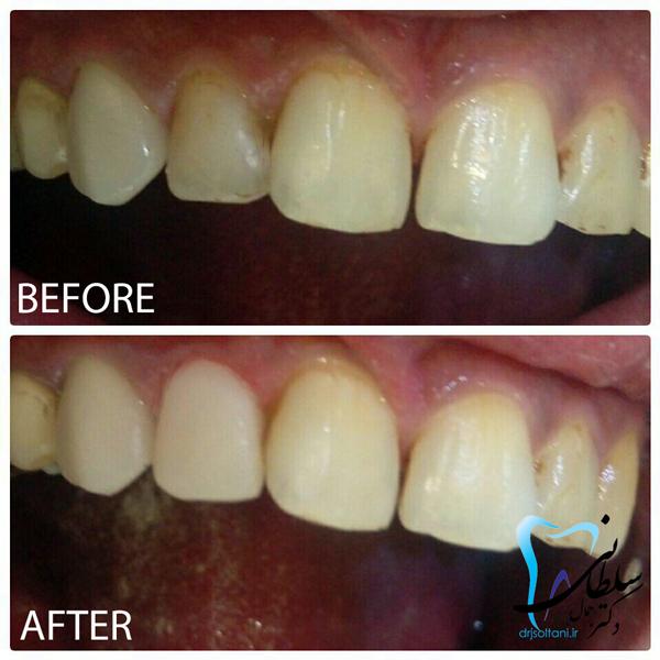 نمونه کار لمینت کامپوزیت دندان دو