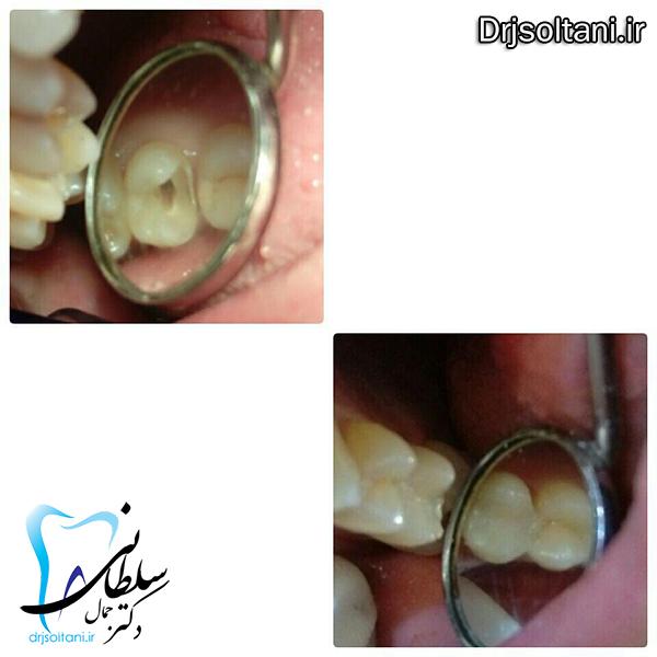 نمونه کار بازسازی تاج دندان با کامپوزیت