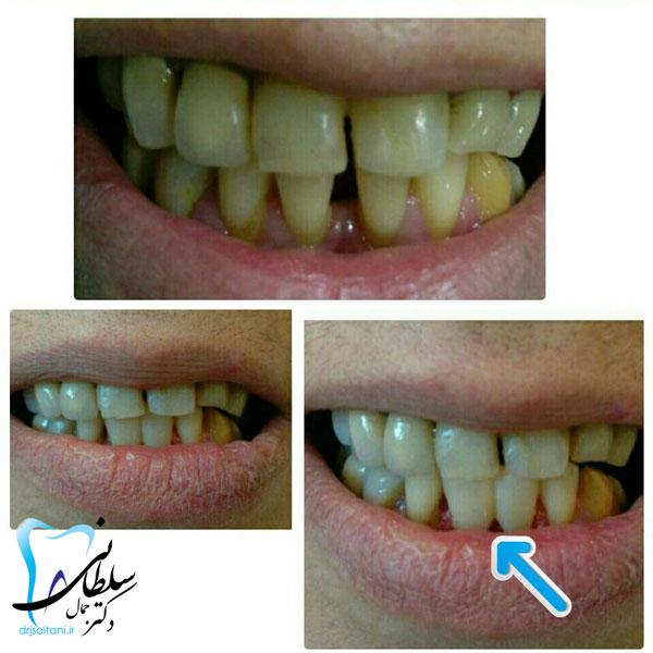 بستن فاصله بین دندانها با کامپوزیت