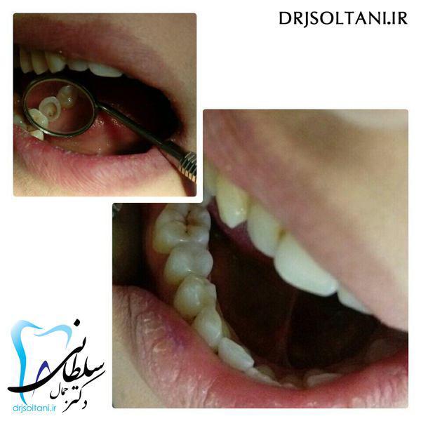 ترمیم و بازسازی دندان با کامپوزیت