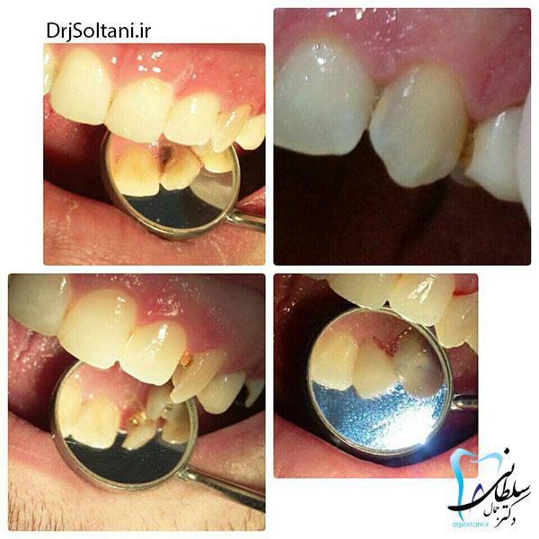 ترمیم و بازسازی دندان نیش با پین و کامپوزیت