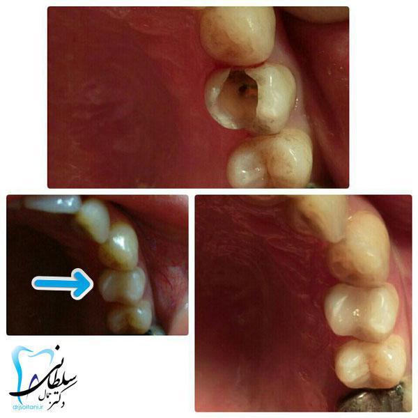 بازسازی تاج دندان با کامپوزیت نوری