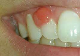 كيست دندان چيست؟