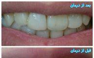 درمان دندانپزشکی