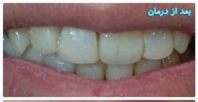 نمونه کار درمان دندانپزشکی