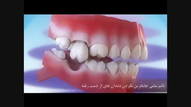 تاثیر منفی جایگزین نکردن دندان از دست رفته