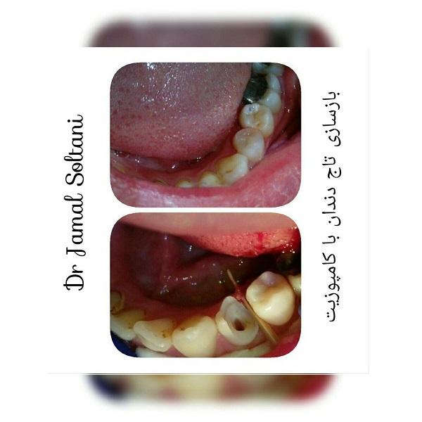 بازسازی تاج دندان با کامپوزیت