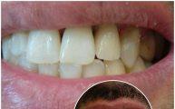 پست و روکش دندان