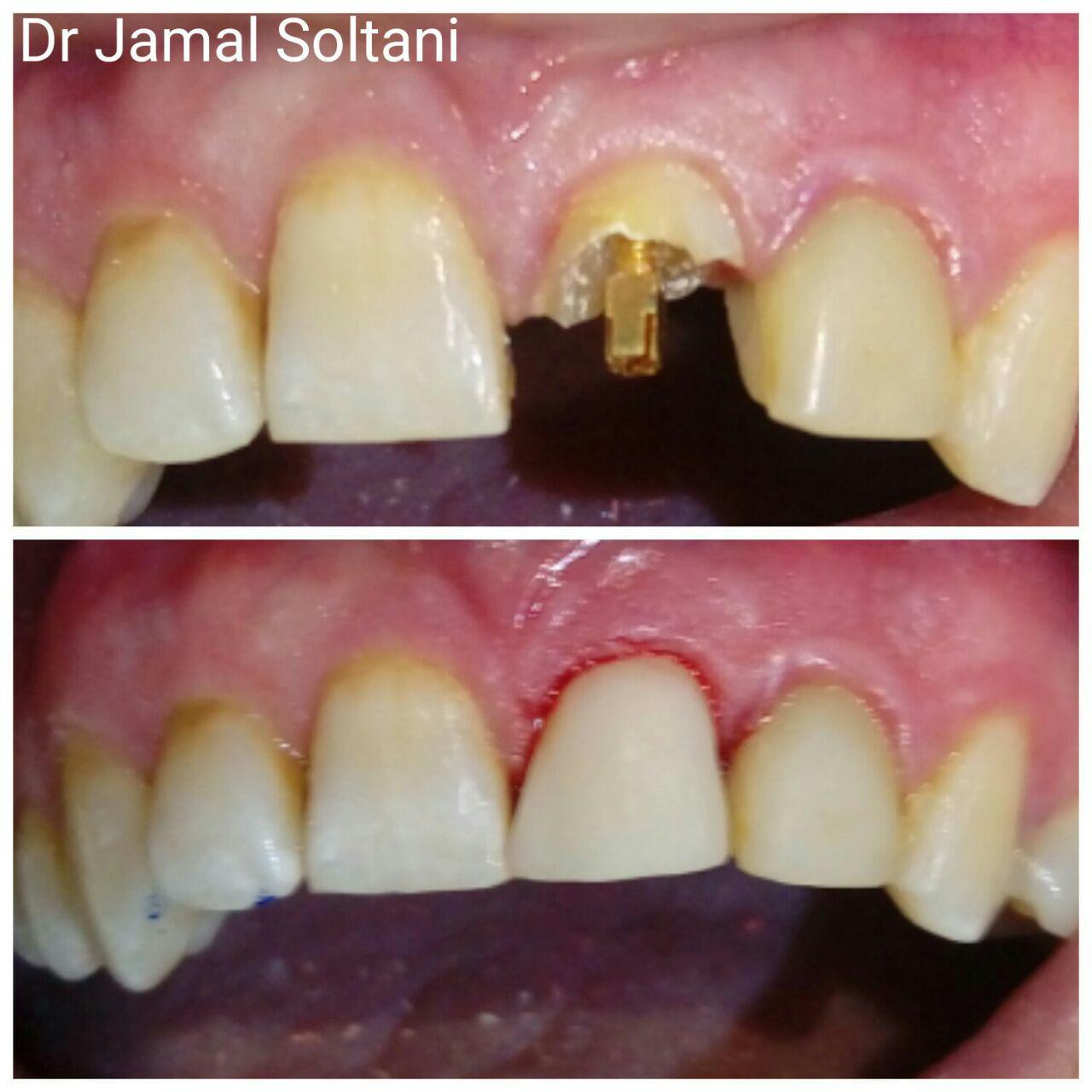 بازسازی تاج شکسته دندان پیشین