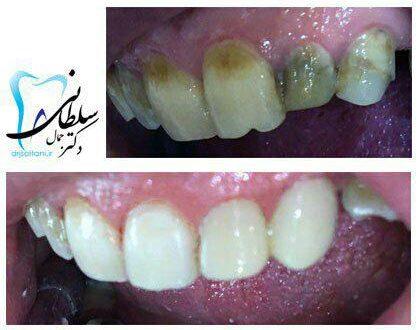 اصلاح بد رنگی و اندازه دندانهای جلویی