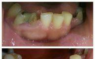 بازسازي تاج و اصلاح رنگ دندان