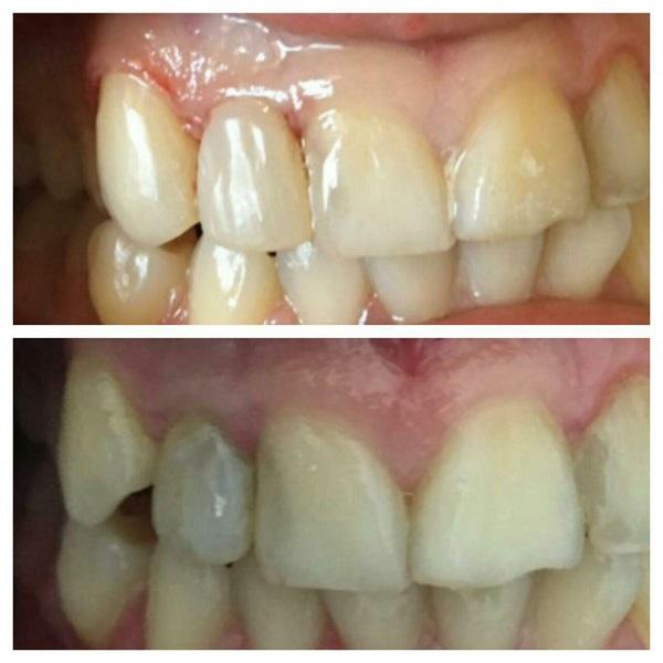 اصلاح رنگ دندان و اندازه دندان پیشین کناری اصلاح فرم دندان نیش و قراردادن در قوس فکی