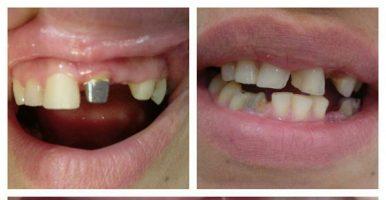 جایگزینی دندان های قدامی با پست و روکش