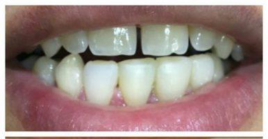 بستن فاصله بین دندانها و اصلاح شکل؛ رنگ و اندازه