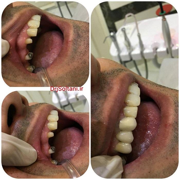 جايگزيني دندان های ازدست رفته به وسيله پروتز ثابت