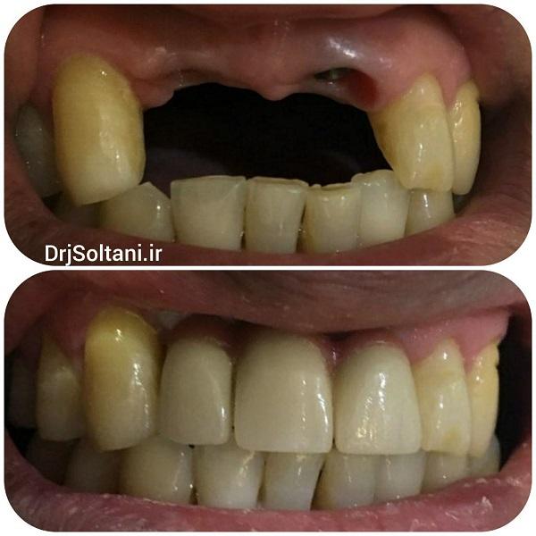 بازسازی دندان های جلویی بوسیله ایمپلنت
