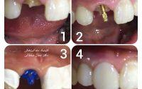 بازسازی تاج دندان شکسته دریک جلسه