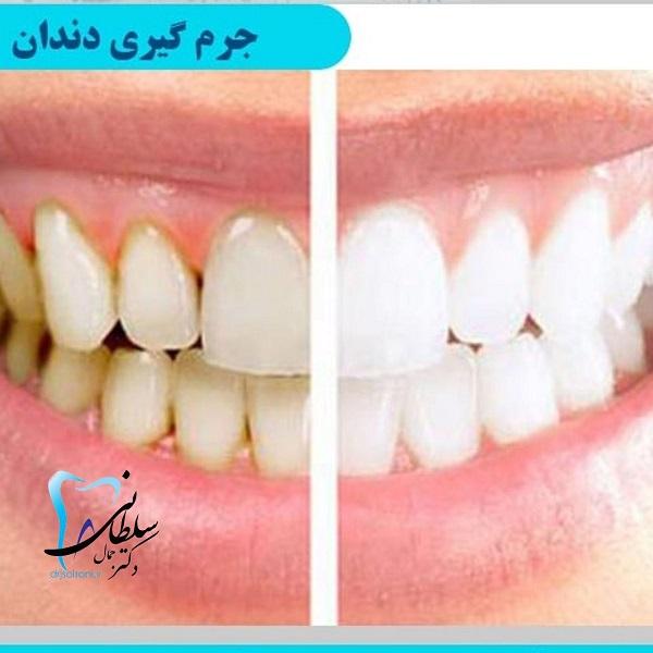 آیا جرم گیری مینای دندان را از بین می برد؟