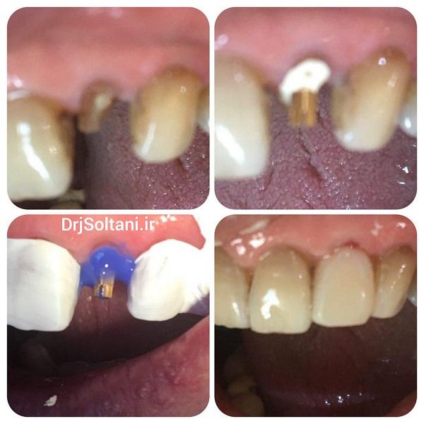 بازسازی تاج دندان ۳/۴/۹۷مدت کار یک جلسه