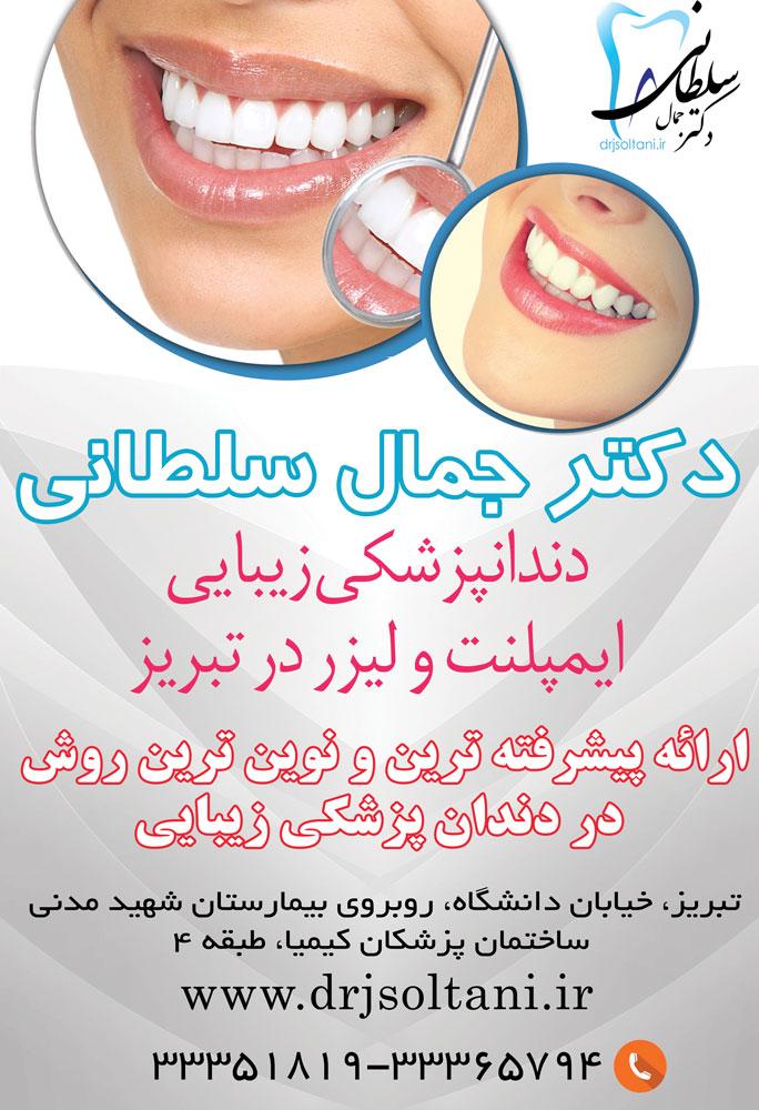دکتر جمال سلطانی ایمپلنت دندانپزشکی زیبایی و لیزر در تبریز