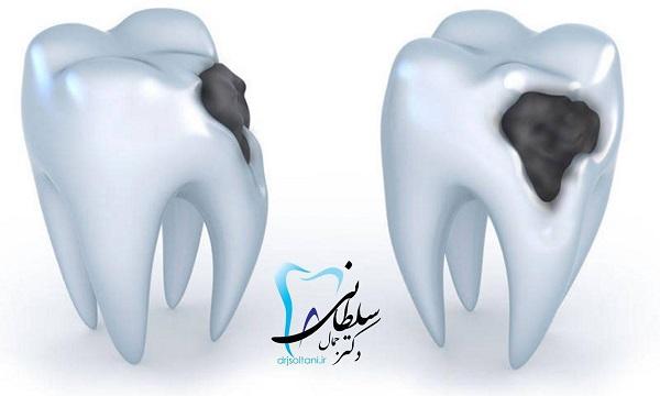 کوه یخ و پوسیدگی دندان!