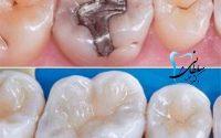 تفاوت های ترمیم آمالگام، کامپوزیت و روکش دندان