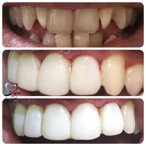 نمونه کار دندانپزشکی؛ لمینت کامپوزیتی همراه با اصلاح شکل و اندازه دندانها