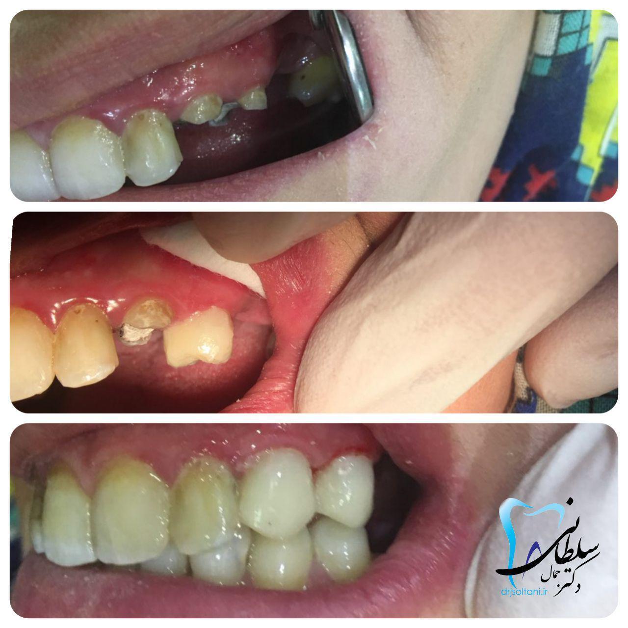 بازسازی تاج دندان های نیش و آسیای کوچک با مواد همرنگ در یک جلسه مورخ۹/۶/۹۷