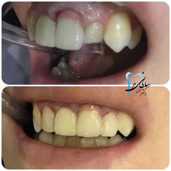 تغییر شکل و اندازه دندان جلویی و قراردادن آن در یک ردیف با بقیه دندانها بدون ارتودنسی و در یک جلسه