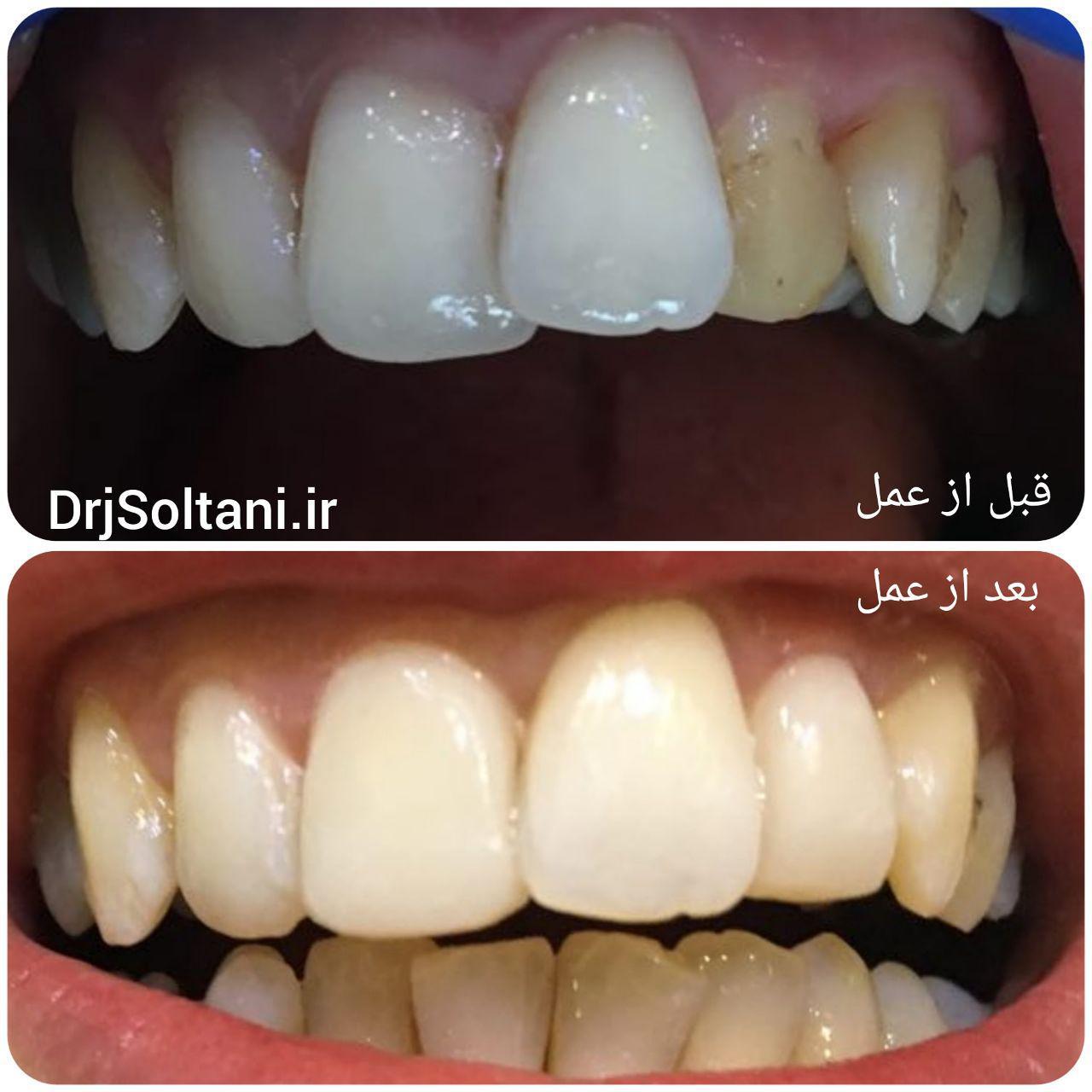 نمونه کار دندانپزشکی