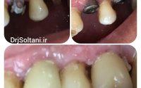 جایگزینی دو عدد دندان آسیا با ایمپلنت